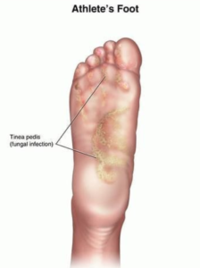 Itchy Feet: Is It a Medical Problem or